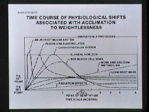 Chart for presentation concerning Physiological shifts during weightlessness